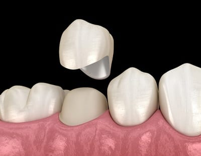 How a dental crown works