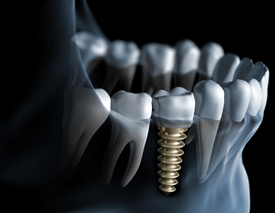 An image of a dental implant in a person's mouth