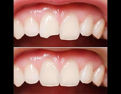 before and after of dental bonding