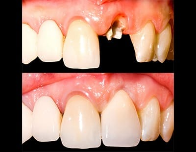 before and after of dental crown