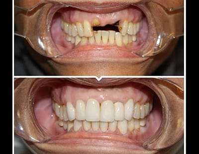 before and after of dental implants