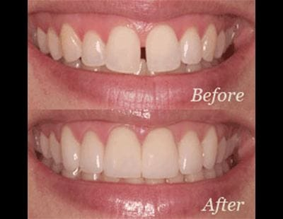 before and after of invisalign® treatment