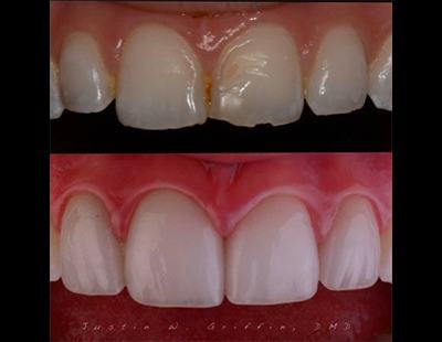 before and after of porcelain veneers