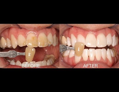 before and after of teeth-whitening