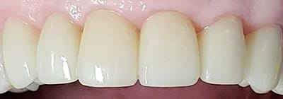 Flawlessly restored front teeth