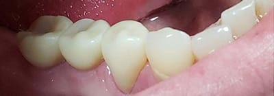Replacement teeth blending seamlessly in smile