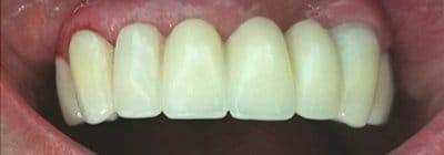 Flawless replacement teeth